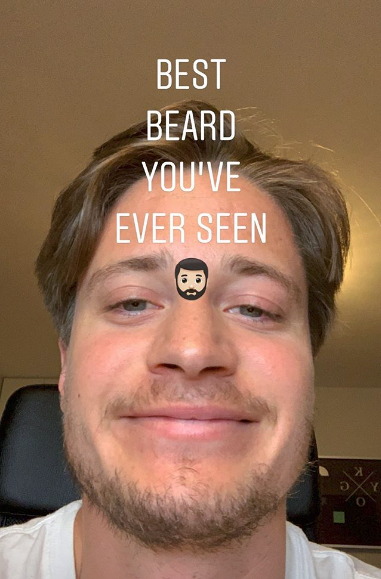 kygo should drop the beard